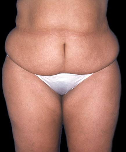 Female Tummy Tuck Surgery Before