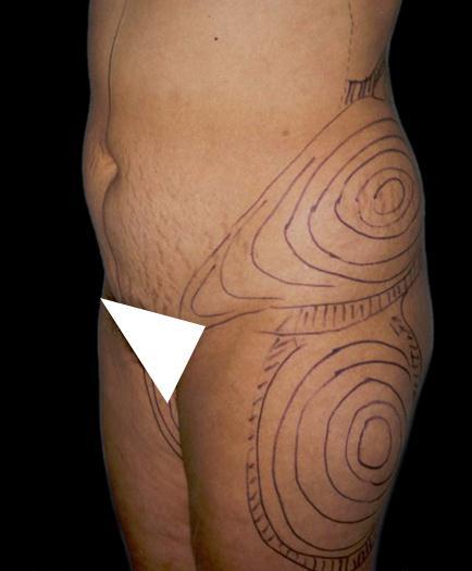 Mini Tummy Tuck Surgery Before