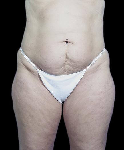 Stomach Abdominoplasty Before