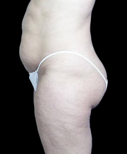 Stomach Abdominoplasty Side View Before