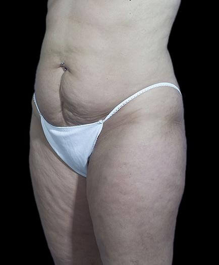 Stomach Abdominoplasty Quarter View Before