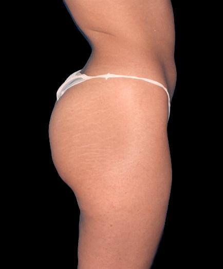 Buttock Augmentation Side View Before