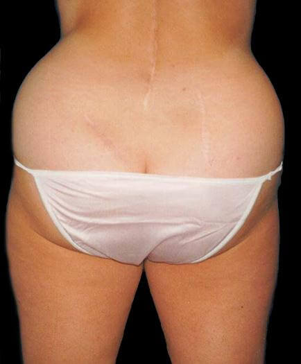 Buttock Liposuction Before