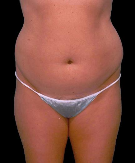 Female Liposuction Before