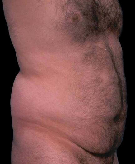 Liposuction For Men Before