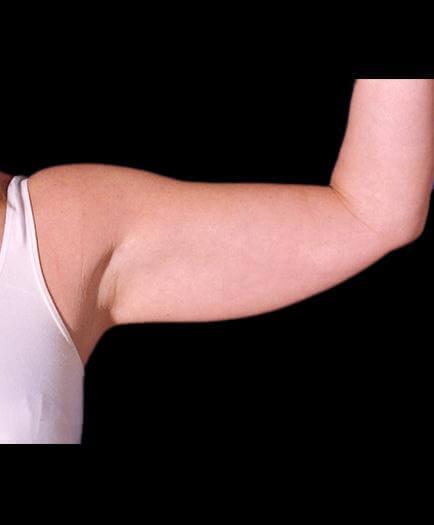 Arm Lift Plastic Surgery Before