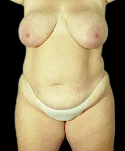 Body Contouring & Breast Reduction Front View Before