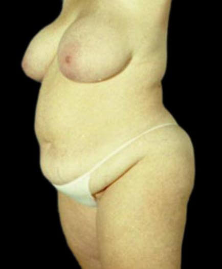 Body Contouring & Breast Reduction Before