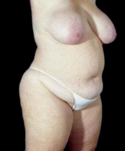 Body Contouring & Breast Reduction Quarter View Before