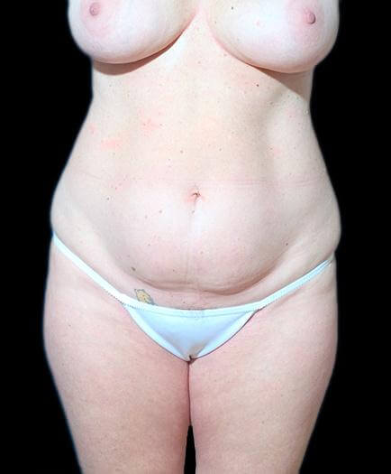 Breast Augmentation & Abdominoplasty Before