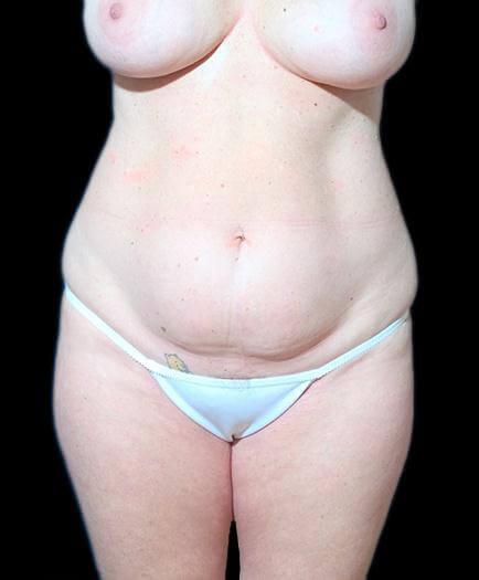 Breast Augmentation & Abdominoplasty Before