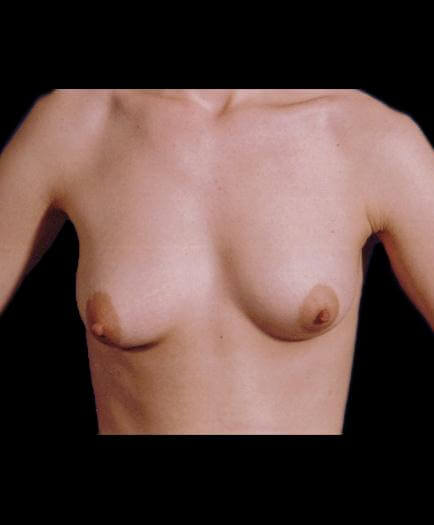 Breast Enlargement & Nipple Surgery Before