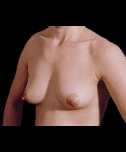 Breast Enhancement & Nipple Surgery Before