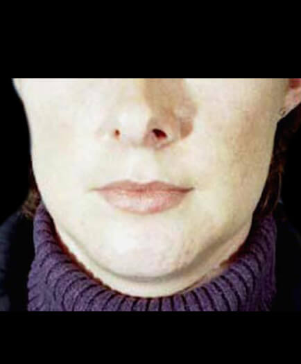 Before Lip Augmentation