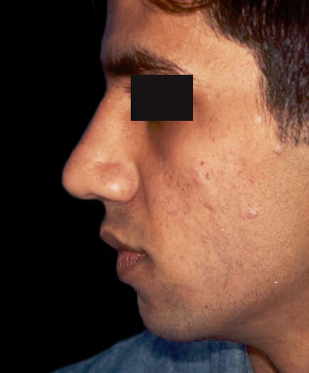 Male Cosmetic Surgery After
