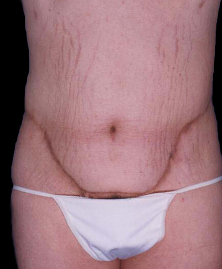 Tummy Tuck For Men After