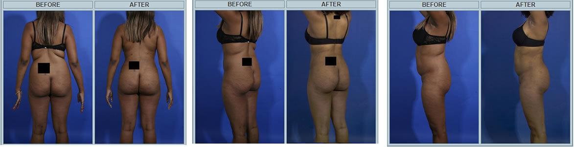 Brazilizn butt lift before and after