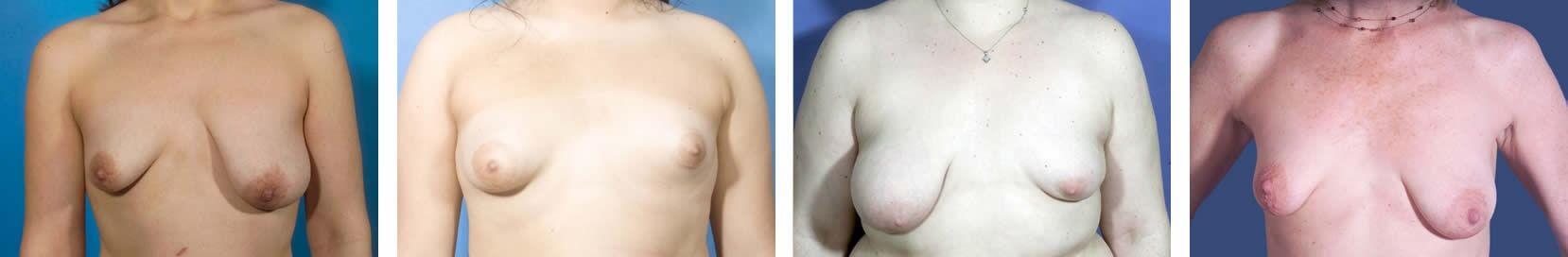 Tuberous breast deformity examples