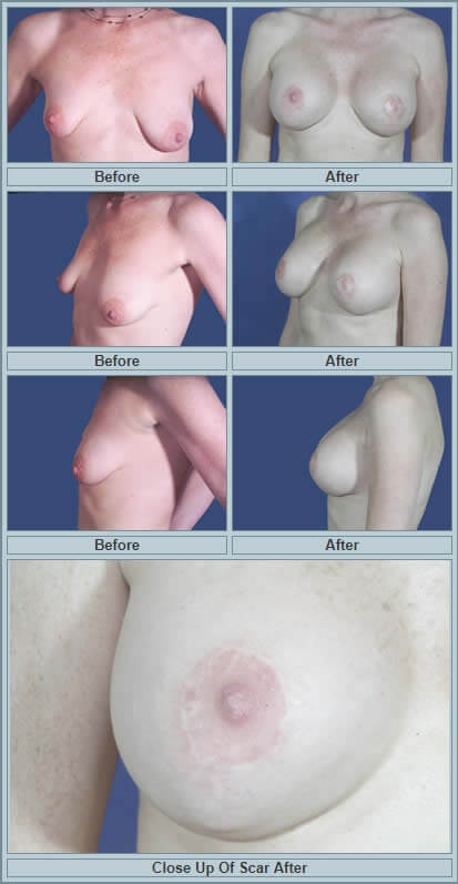 Tuberous breast deformity surgery before and after