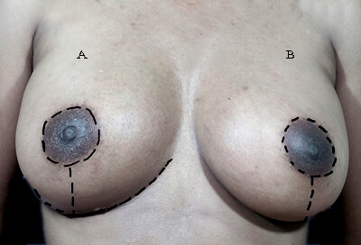 Short scar breast lift incision diagram