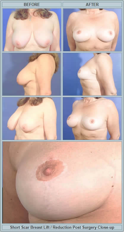 Short scar breast lift before and after